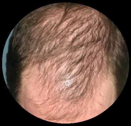 hair_serum_ben_1